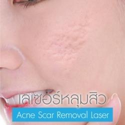 Acne Scar Removal Laser