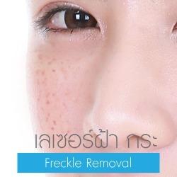 Freckle Laser Removal